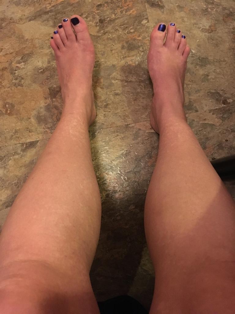 Blotchy Skin On Legs