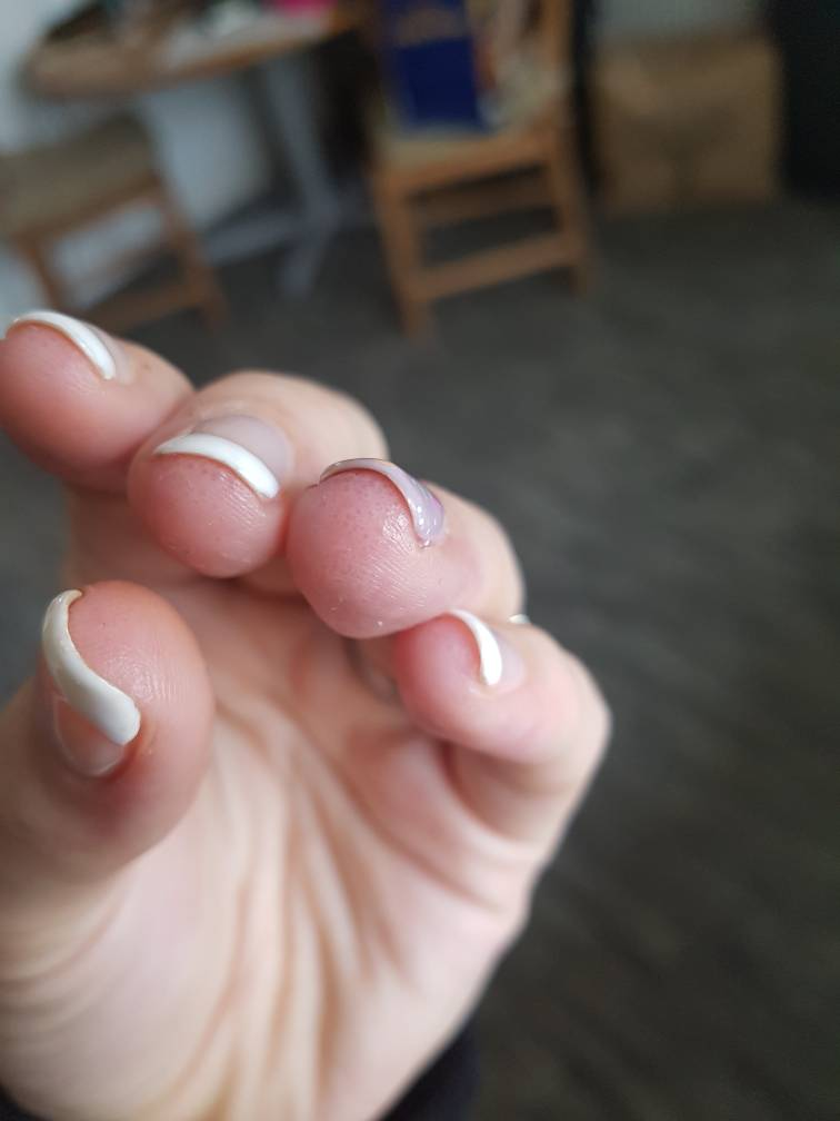 Contact Dermatitis - gel polish | Netmums