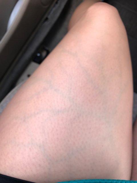 visible blue veins