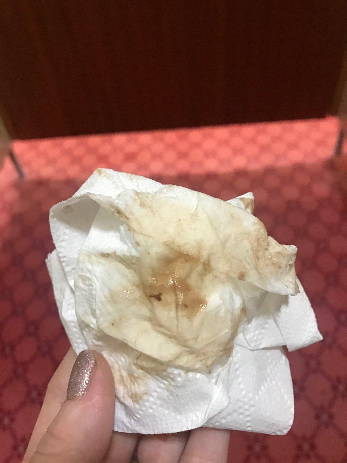 Brown discharge 36 weeks | Netmums